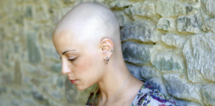 taxotere-alopecia-patient