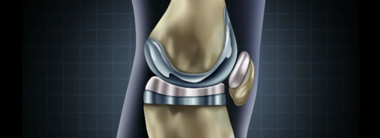 knee replacement implant